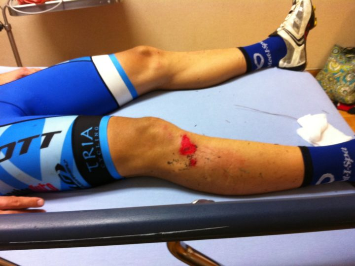 How to Treat Road Rash and Abrasions?